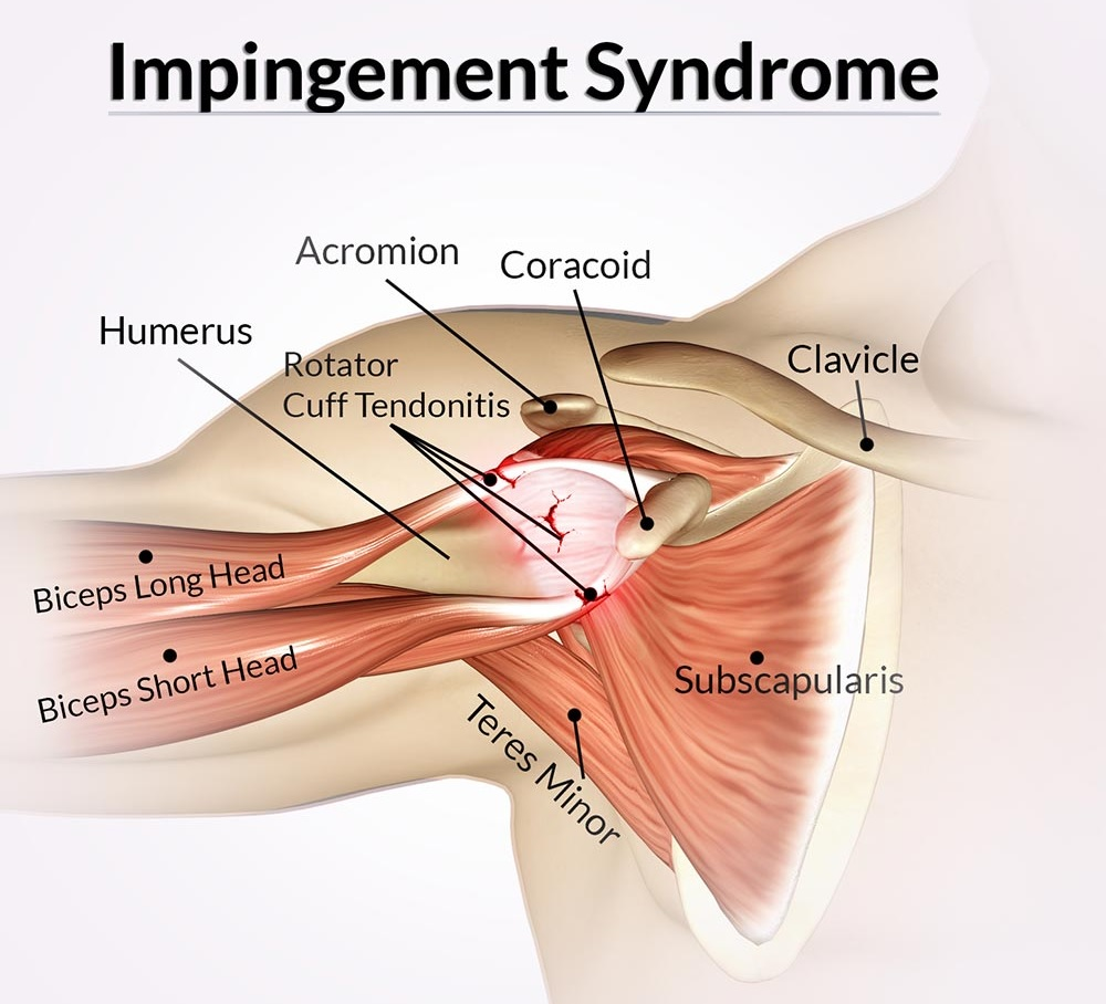 Shoulder Impingement Syndrome | Local Physio