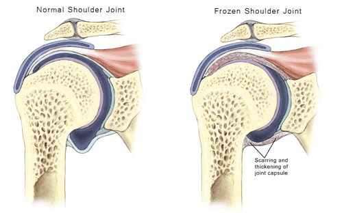 Frozen Shoulder Anatomy