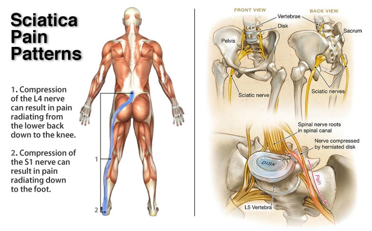 sciatica | local physio, Skeleton