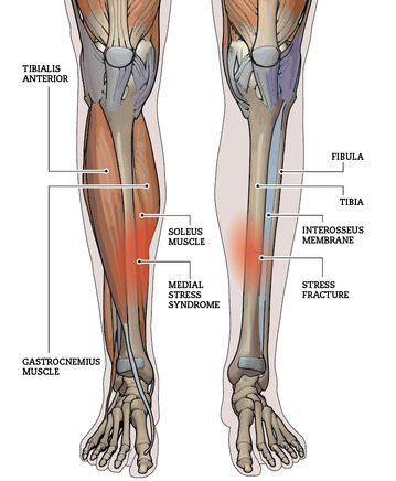 Shin Splint Anatomy
