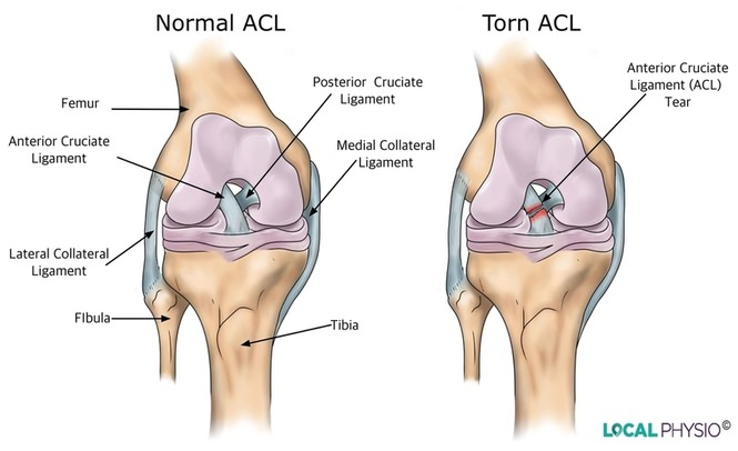 Anterior Cruciate Ligament (ACL) Injury | Local Physio