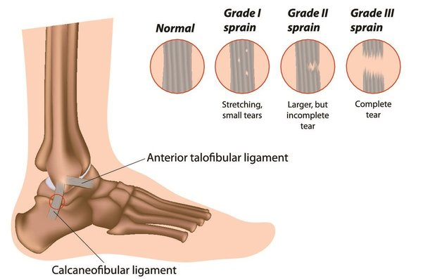 Sprained Ankle Anatomy
