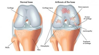 Osteoarthritis Knee Explained