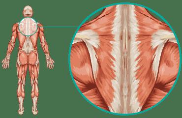 Upper Back